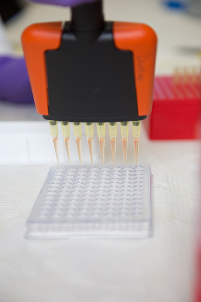 """Pipette work in the West Ridge Research Building.  <div class=""""ss-paypal-button"""">Filename: AAR-12-3673-4.jpg</div><div class=""""ss-paypal-button-end"""" style=""""""""></div>"""