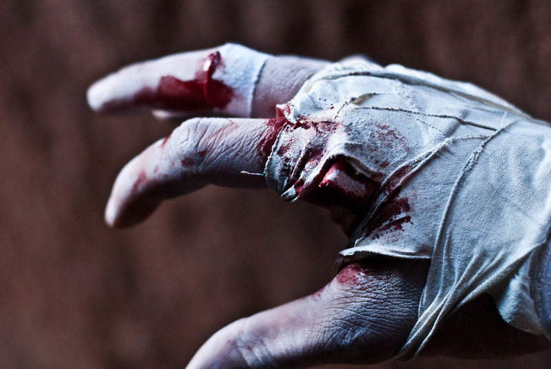 My gruesome crack climbing hand.