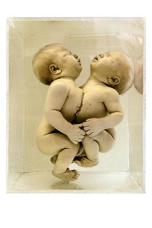 Conjoined Twins, Thoracopagus