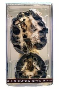 No. 1146, Bilateral Nephrolithiasis