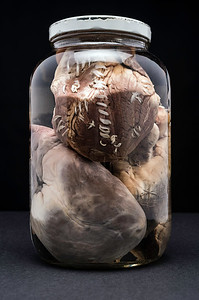 A Jar of Hearts (Damage)