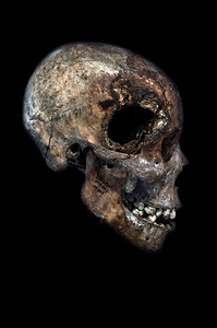 MM1752 - Skull with Artillery Wound