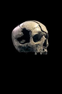 Cranium, Gunshot Wound