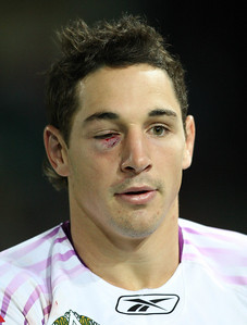 26 April 2008 Townsville, Qld - Billy Slater suffered an eye injury after A johnathan Thurston first haf tackle - North Queensland Cowboys v Melbourne Storm (Dairy Farmers Stadium) - Photo: Cameron Laird (Ph: 0418 238811)