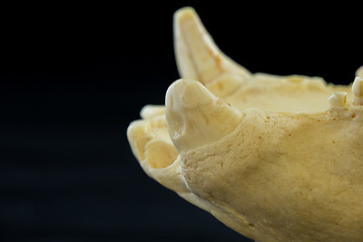 View of Severely Worn Maxillary Canine