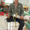 This Patient lost his leg in 1983 in Cambodia fighting against the Khmer Rouge. When he returned to Vietnam he was fitted with a prosthetic but it did not withstand his work in the rice fields, so he had to adapt it for the wet and muddy conditions. When a group of volunteers visited the buddhist temple he attends last year, he was told how to get fitted for a new prosthetic at the Mercer Clinic.<br /> <br /> <br /> -he was fitted in 1983, but it did not work for farming. he adapted it with metal and wood made by hand, because as a farmer he can't afford to get another prosthetic. Working in the rice fields it broke over and over again<br /> -it weighed 10 kilos? pounds?<br /> -he is very happy USA and Vietnam are getting along so that he can get a new leg<br /> <br /> Q4 Now that you have a lighter prosthetic, what will life be like now?<br /> -thankful it is so light, easy to walk comfortable, and will make heavy work easier<br /> <br /> thank you to the US from Vietnam<br /> <br /> <br /> Q6 How did he find out about Mercer prosthetics?		<br /> -