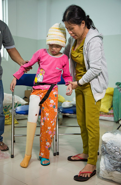This 8 year old patient lost her leg three months ago due to a bone tumor. Now that she has a new prosthetic, her parents will no longer have to carry her to school.