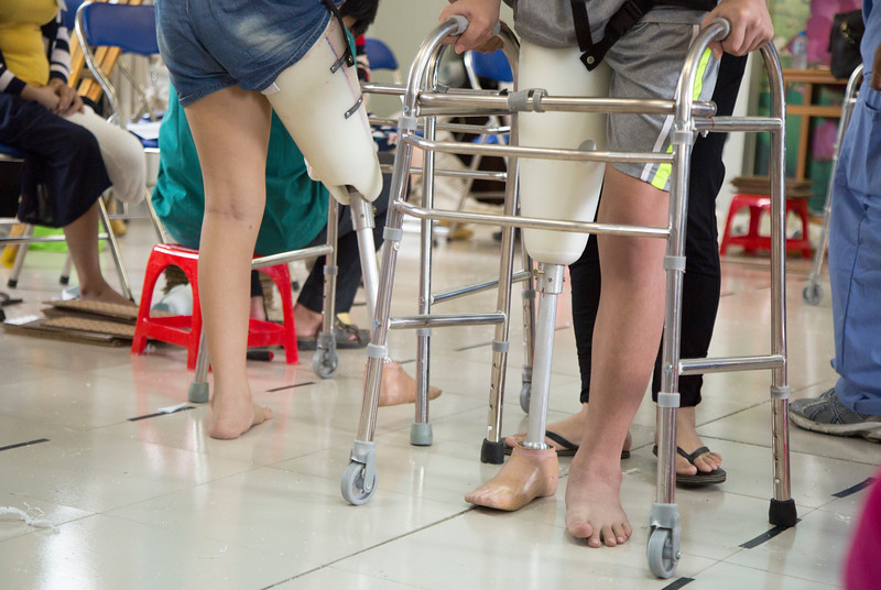 When Mercer prosthetics team holds a clinic in Ben Tre, amputees come from all over Vietnam to be fitted with new legs. The fitting room is in constant motion with multiple patients being measured and fitted at the same time, while others practice walking with on new legs.