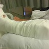 IMAG0310 lauren accident