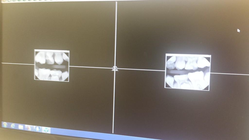 10.27.15 isabella at the dentist