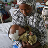 Neurosurgery in Mwanza, Tanzania