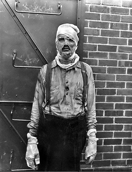 Severly burned man with his face and hands bandaged.