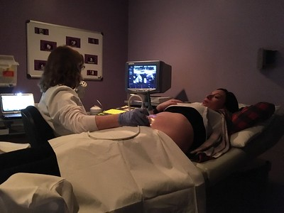 Ultrasound #3