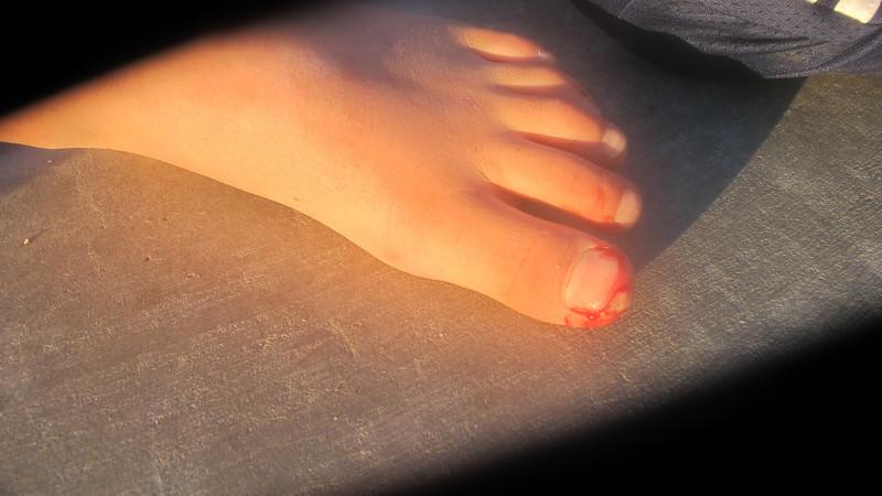 Dani's bloody toe!