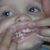 I know it's hard to see, but he has 5 incisors between his canines. Is that normal?