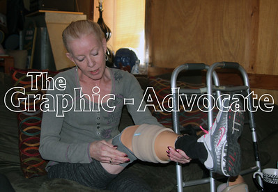 Pam Portillo of Lake City demonstrates how she puts on one of her new prosthetic legs. GRAPHIC-ADVOCATE PHOTO/ERIN SOMMERS