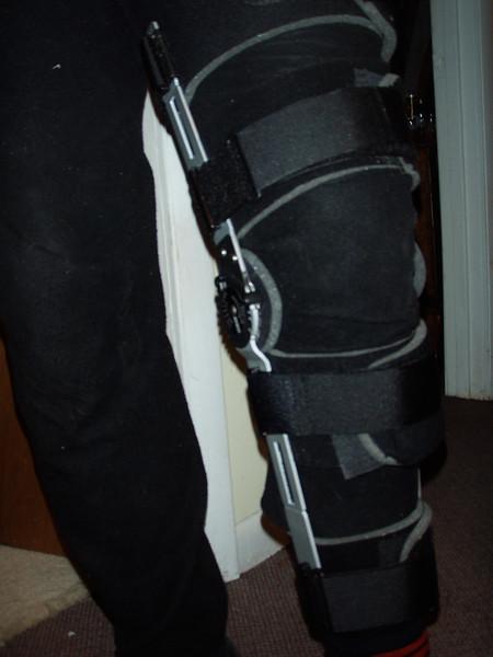 Bum Knee