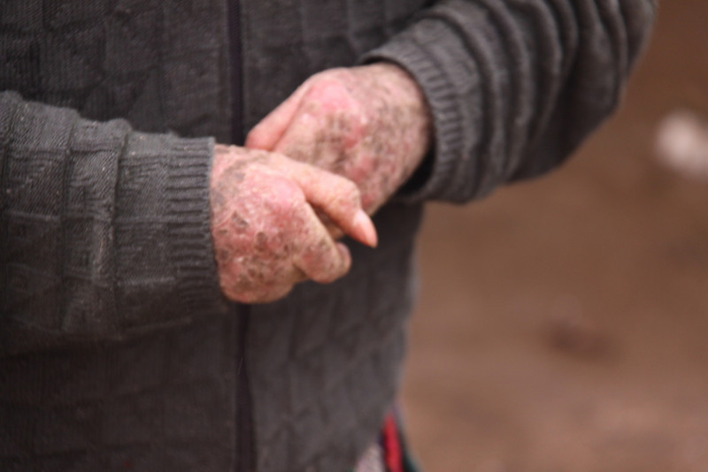 """Here you can see the dry skin of icthyosis.  Dick says this is markedly improved from when he first """"got lost"""" and found her."""