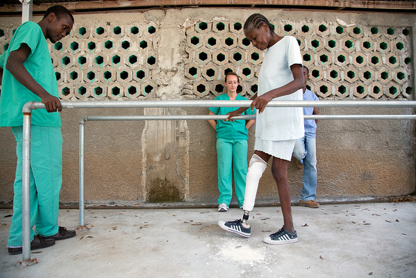 A woman is fitted and tries her new prosthetic leg at the Prosthetics Lab at Hopital Sacré Coeur in Milot, Haiti. <br /> Photos from Hopital Sacré Coeur, the CRUDEM foundation, and Holy Name Medical Center's involvement in Milot, Haiti.  Photo by Jeff Rhode / Holy Name Medical Center 6/13/12