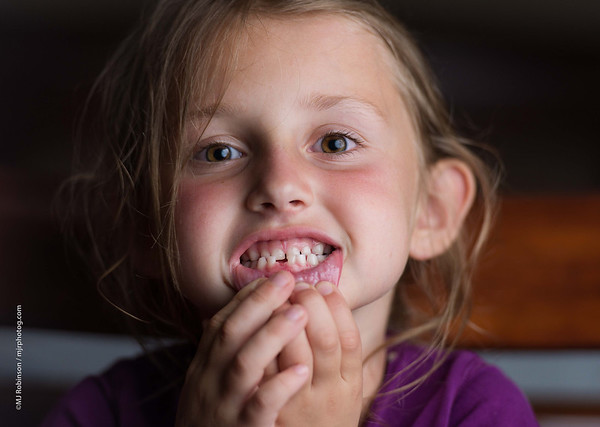 First Lost Tooth.