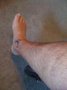 2009 07 27 - Bare broken leg