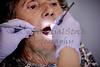 Elderly woman gettng her Teeth Cleaned