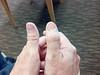 2012-07-11_Thumb_before