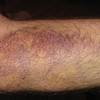 My forearm after sliding down the icy Monroe in April.