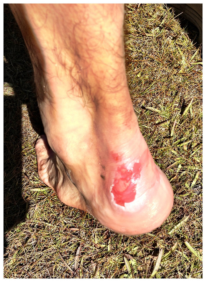 G-man ….. Blisters!