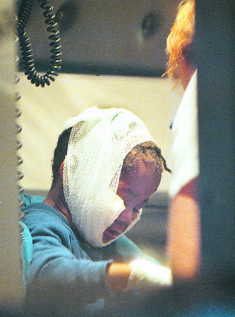 1/27/97--FIRE VICTIM--DAN CAPPELLAZZO PHOTO--A YOUNG GIRL IS ATTENDED TO AFTER SUFFERING BURNS TO HER FACE IN AN AFTERNOON FIRE ON SIXTH STREET.<br /> <br /> 1A
