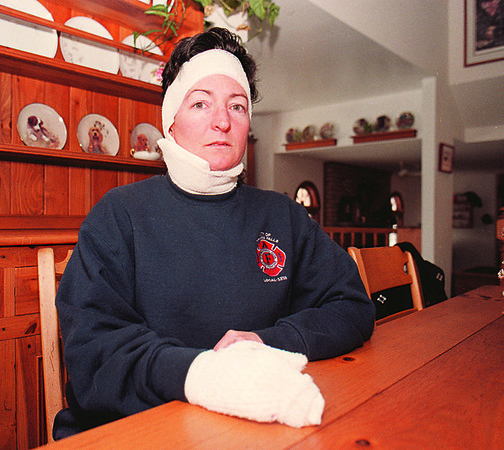 1/27/97--FIRE VICTIM--DAN CAPPE LLAZZO PHOTO--NF FIRE CAPT. MARGO KUNDL SITS IN HER HOME IN BREGHOLTZ. SHOING INJURYS TO HER HAND AND FACE.<br /> <br /> ECHO