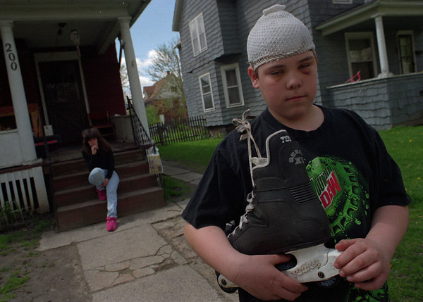 5/21/97--ROLLERBLADE/ACCIDENT VICTIM--DAN CAPPELLAZZO PHOTO--13-YR-OLD ALBERT SMITH, WHO WAS HIT BY A CAR WHILE PLAYING ROLLER HOCKEY, STANDS IN FRONT OF HIS 57TH STREET HOME AS HIS MOTHER DARLENE WALL SITS ON PORCH. ALBERT WILL NO LONGER ROLLERBLADE.