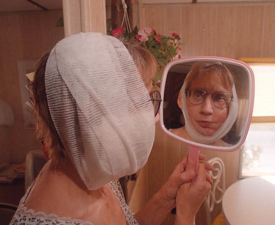 2/17/97 Carolyn Rasmussen - James Neiss Photo - Face Cancer Sufferer.