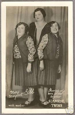 Holyoke Siamese Twins born Holyoke