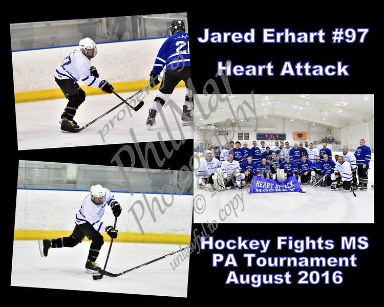 Heart Attack Code Blue VS Heart Attack White Cells