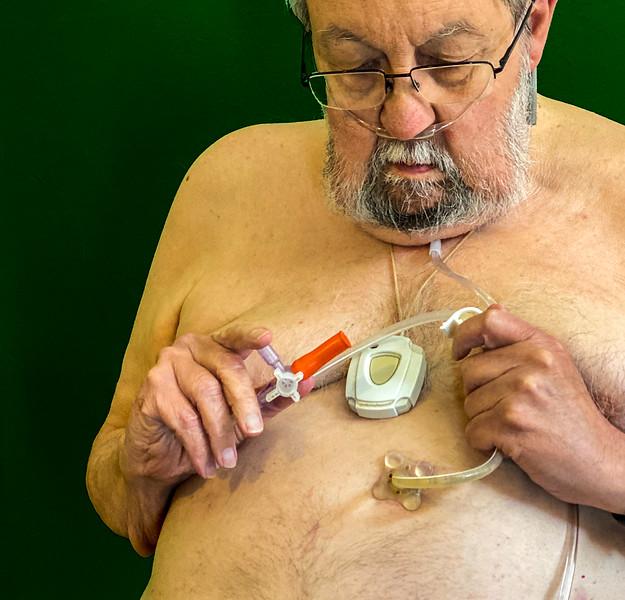 PEG tube into stomach