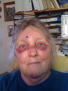Me... got drunk, fell down, went boom, broke nose, gashed forehead, smashed chin, seriously injured my pride, looked like this for weeks. UGH!!