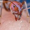 Meat Ant Bites
