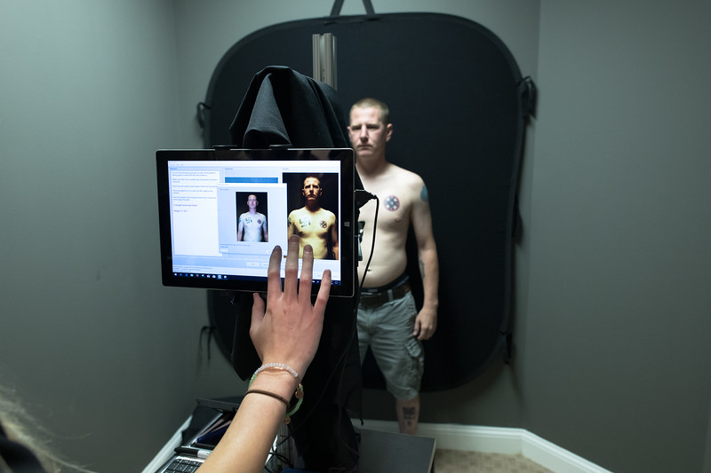 "Ken Parker,  a former Nazi and Klansman in the process of taking a ""before"" photo prior to laser tattoo removal treatment -  a large swastika and Mioak (Klan blood drop cross) on his chest and a third racially themed tattoo on his shin."