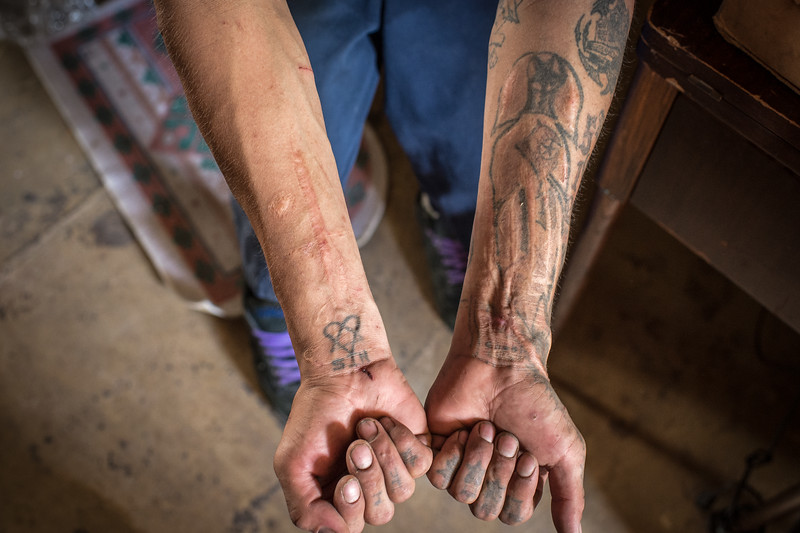 Suicide attempts mark the wrists of this Lakota teenager.