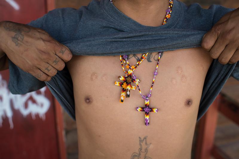 Sundance scars. The Sundance is one of the Seven Sacred Rituals of the Lakota.