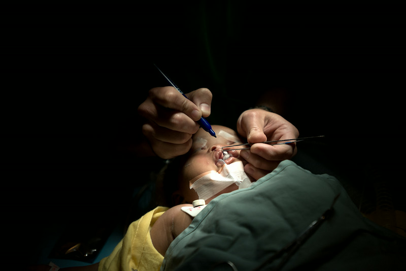 Haiti. A volunteer surgeon from Texas Children's Hospital ties off the closing suture on a cleft repair. The procedure took less than an hour. In most cases, the actual cost of the surgery is approximately $250.
