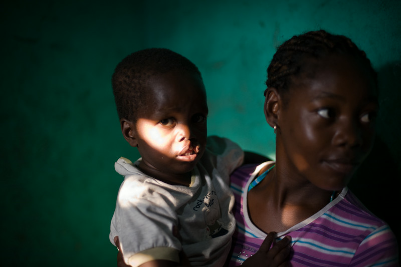 Haiti. In America alone, more than 5,000 babies are born each year with a cleft lip and/or a cleft palate, making it one of the most common major birth defects. <br /> <br /> Orofacial clefts are openings in the lip or palate (roof of mouth) that are caused by an incomplete development during early fetal formation. In addition to various cultural and social stigmas, associated problems include: feeding issues, middle ear infections, hearing loss, dental abnormalities and speech difficulties.