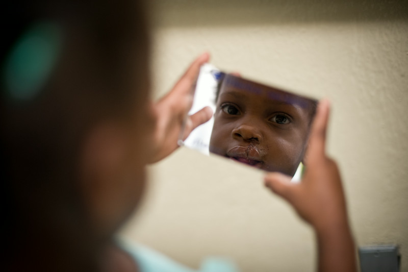 Haiti. After six years of disfigurement, Bergaline Moise looks at her new smile for the first time.