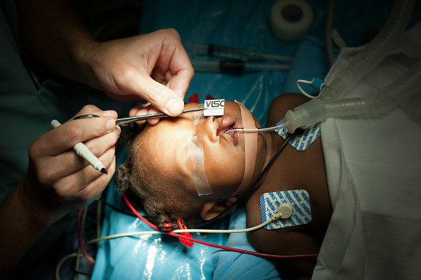 A surgeon makes reference marks in preparation for a surgery to repair a cleft lip and palate.