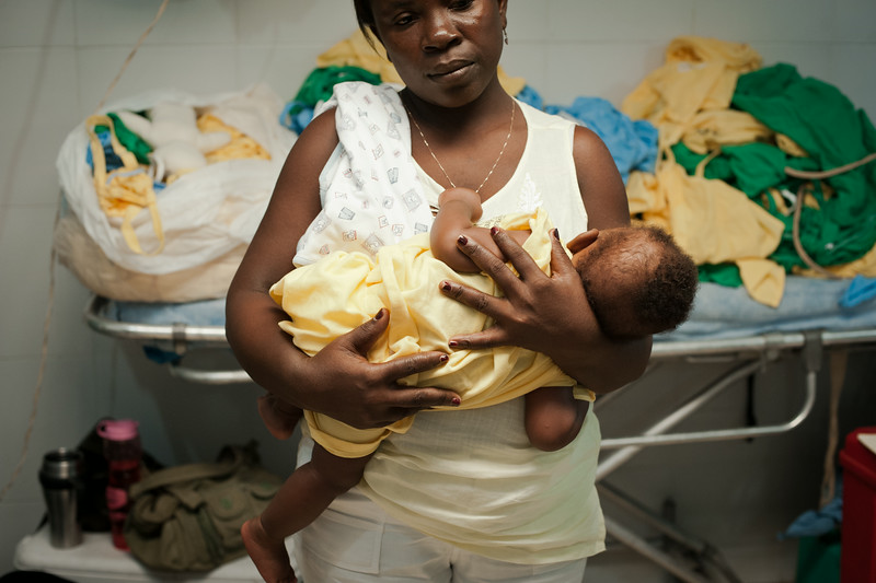 Haiti. A mother calms her baby down shortly before his surgery to repair a bi-lateral cleft.