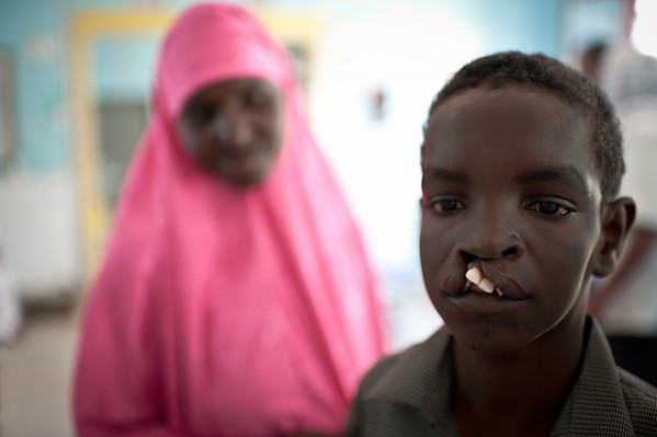 Young boy with a cleft lip. Mogadishu, Somalia.