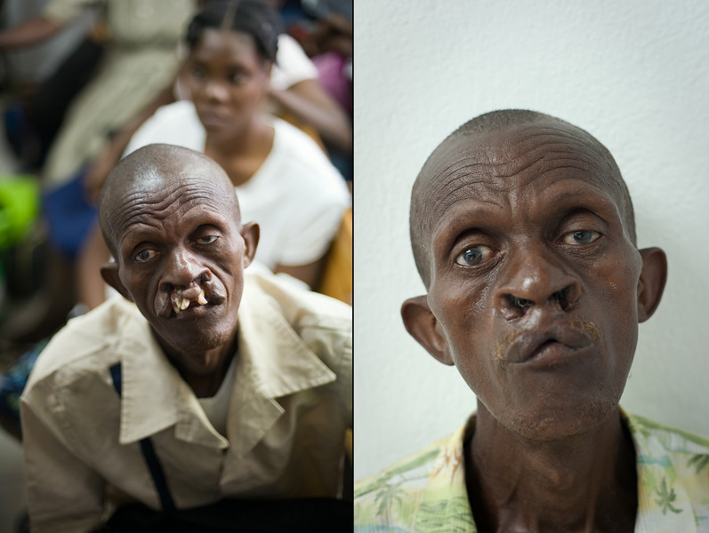Haiti. Before and after images of an adult born with a bi-lateral cleft lip and palate. The progress is after two corrective surgeries. This patient went on to receive one more.