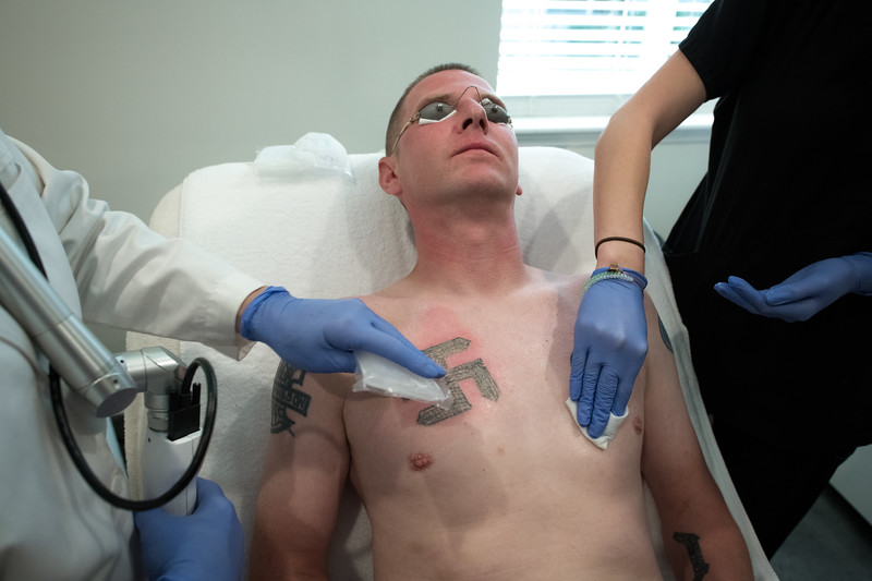 Ken Parker, a former Nazi and Klansman during laser tattoo removal treatment.