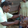 Nurse Aloisia examines a patient during a community screening in West New Britian, Papua New Guinea. Credit: Fred Hollows